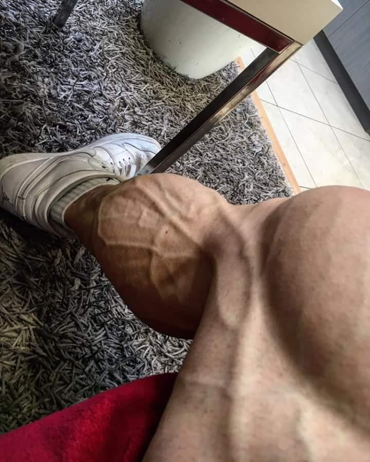 i polpacci pieni di vene di Nicolas Vullioud